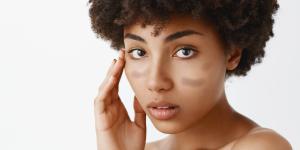 ¿Por qué salen manchas en la piel?