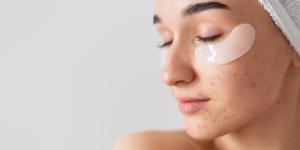 Acné hormonal: síntomas y tratamiento