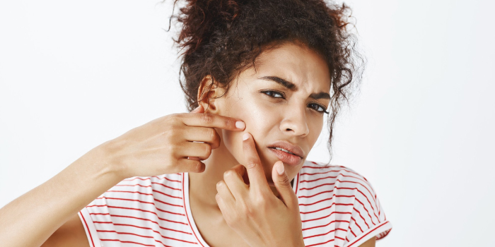 ¿Cómo tratar el acné?