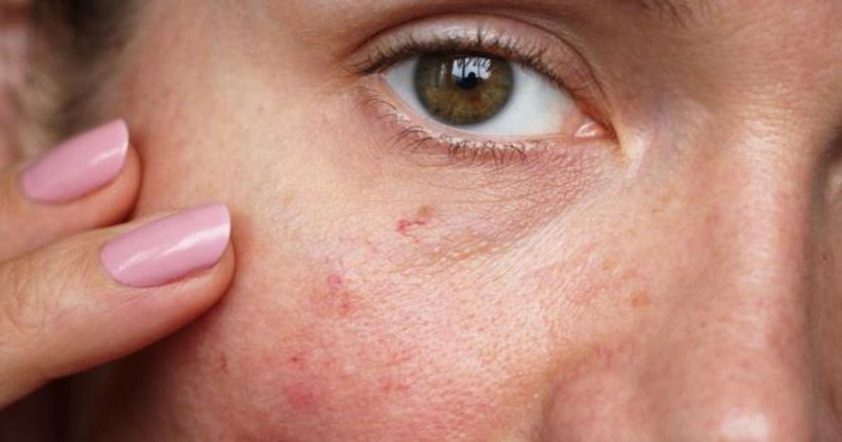 Manchas en la piel: causas y tratamiento